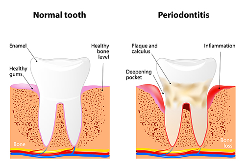 Illustration of a tooth with periodontal disease, in need of scaling and root planning, at dentist office in Nutley, NJ.